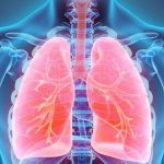Ожирение может помочь в лечении рака легких — исследование