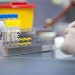Онлайн-магазин начал продавать тесты на коронавирус в Москве