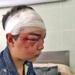 Издевательства над подростком из Рогани расследуются по четырем статьям УК