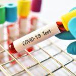На Луганщине выявили еще 18 случаев заражения COVID-19
